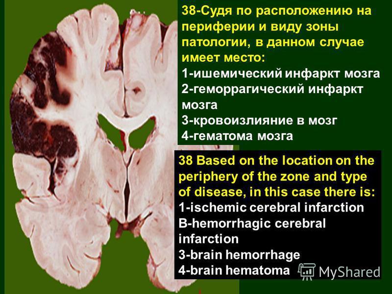38-Судя по расположению на периферии и виду зоны патологии, в данном случае имеет место: 1-ишемический инфаркт мозга 2-геморрагический инфаркт мозга 3-кровоизлияние в мозг 4-гематома мозга 38 Based on the location on the periphery of the zone and typ