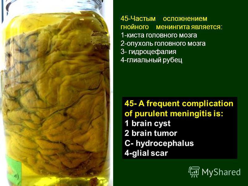 45-Частым осложнением гнойного менингита является: 1-киста головного мозга 2-опухоль головного мозга 3- гидроцефалия 4-глиальный рубец 45- A frequent complication of purulent meningitis is: 1 brain cyst 2 brain tumor C- hydrocephalus 4-glial scar