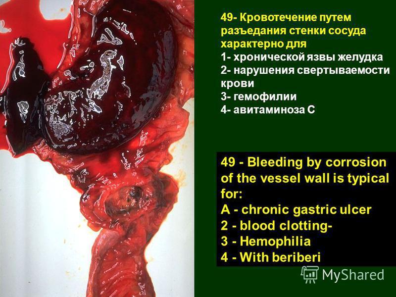 49- Кровотечение путем разъедания стенки сосуда характерно для 1- хронической язвы желудка 2- нарушения свертываемости крови 3- гемофилии 4- авитаминоза С 49 - Bleeding by corrosion of the vessel wall is typical for: A - chronic gastric ulcer 2 - blo