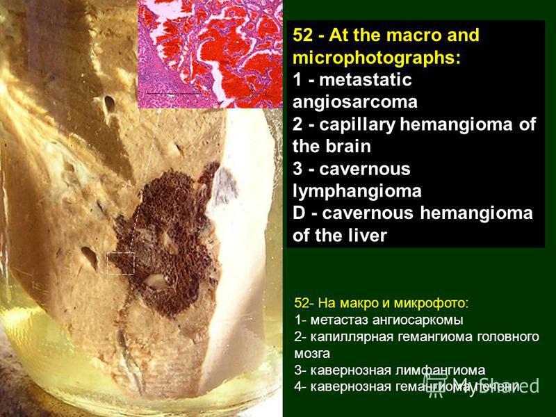 52- На макро и микрофото: 1- метастаз ангиосаркомы 2- капиллярная гемангиома головного мозга 3- кавернозная лимфангиома 4- кавернозная гемангиома печени 52 - At the macro and microphotographs: 1 - metastatic angiosarcoma 2 - capillary hemangioma of t