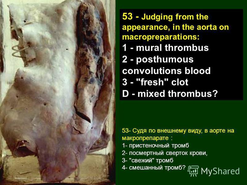53- Судя по внешнему виду, в аорте на макропрепарате : 1- пристеночный тромб 2- посмертный сверток крови, 3-