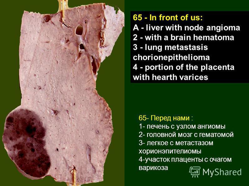 65- Перед нами : 1- печень с узлом ангиомы 2- головной мозг с гематомой 3- легкое с метастазом хорионэпителиомы 4-участок плаценты с очагом варикоза 65 - In front of us: A - liver with node angioma 2 - with a brain hematoma 3 - lung metastasis chorio