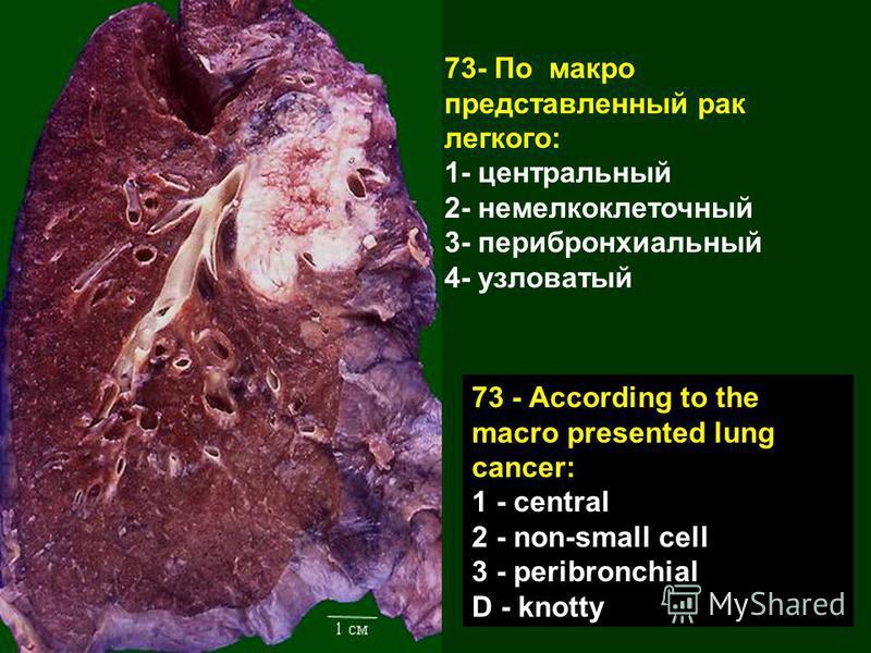 73- По макро представленный рак легкого: 1- центральный 2- немелкоклеточный 3- перибронхиальный 4- узловатый 73 - According to the macro presented lung cancer: 1 - central 2 - non-small cell 3 - peribronchial D - knotty
