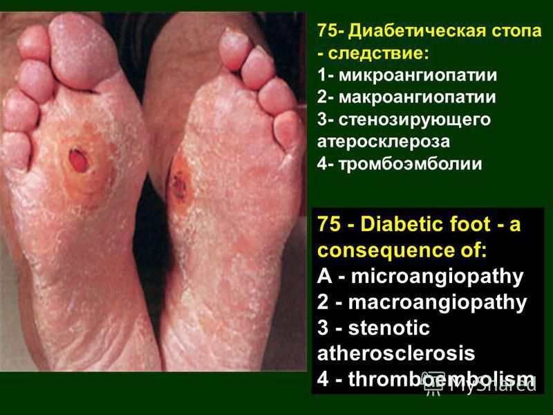 75- Диабетическая стопа - следствие: 1- микроангиопатии 2- макроангиопатии 3- стенозирующего атеросклероза 4- тромбоэмболии 75 - Diabetic foot - a consequence of: A - microangiopathy 2 - macroangiopathy 3 - stenotic atherosclerosis 4 - thromboembolis