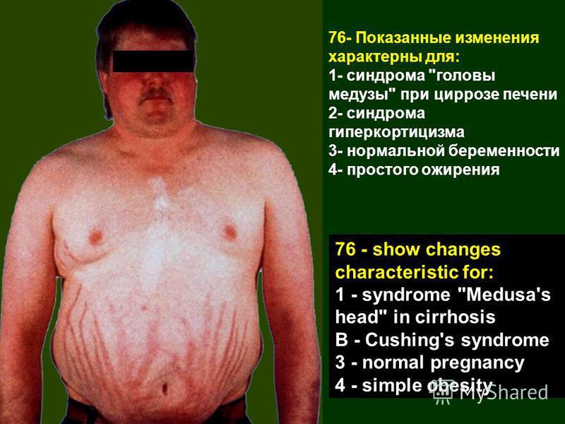 76- Показанные изменения характерны для: 1- синдрома