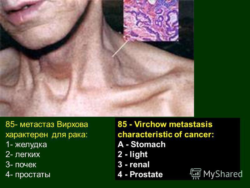 85- метастаз Вирхова характерен для рака: 1- желудка 2- легких 3- почек 4- простаты 85 - Virchow metastasis characteristic of cancer: A - Stomach 2 - light 3 - renal 4 - Prostate