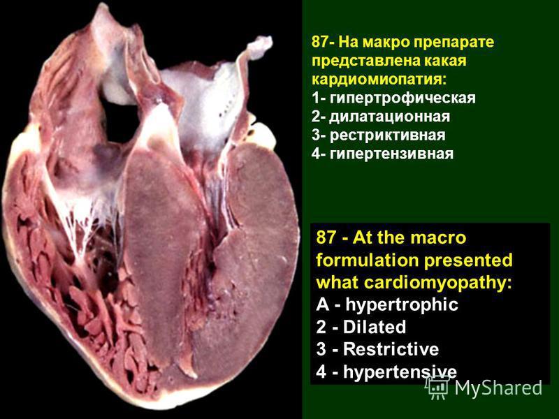 87- На макро препарате представлена какая кардиомиопатия: 1- гипертрофическая 2- дилатационная 3- рестриктивная 4- гипертензивная 87 - At the macro formulation presented what cardiomyopathy: A - hypertrophic 2 - Dilated 3 - Restrictive 4 - hypertensi