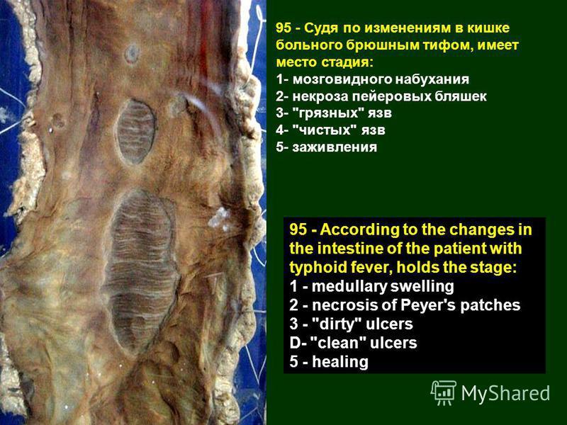 95 - Судя по изменениям в кишке больного брюшным тифом, имеет место стадия: 1- мозговидного набухания 2- некроза пейеровых бляшек 3-