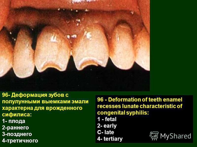 96- Деформация зубов с полулунными выемками эмали характерна для врожденного сифилиса: 1- плода 2-раннего 3-позднего 4-третичного 96 - Deformation of teeth enamel recesses lunate characteristic of congenital syphilis: 1 - fetal 2- early C- late 4- te