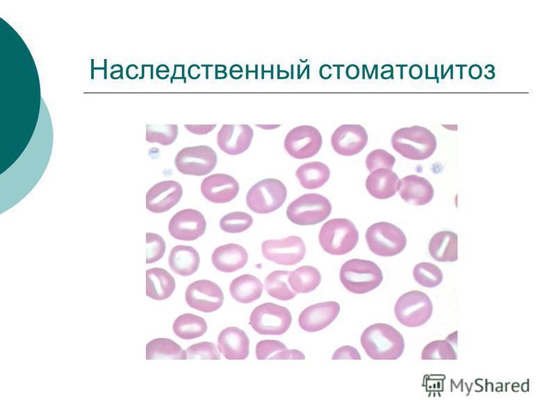 Наследственный стоматоцитоз