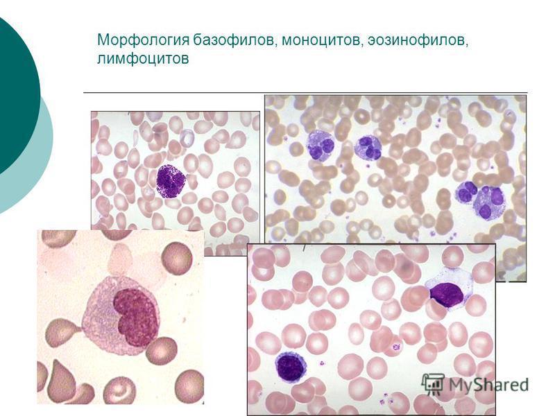 Морфология базофилов, моноцитов, эозинофилов, лимфоцитов