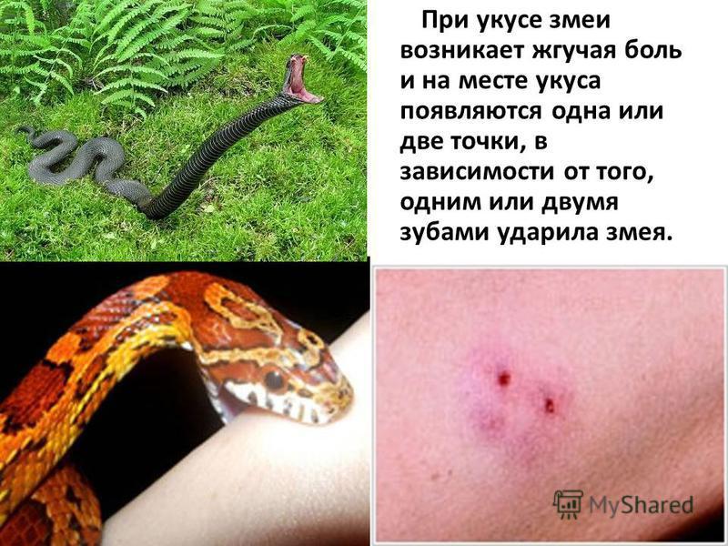 При укусе змеи возникает жгучая боль и на месте укуса появляются одна или две точки, в зависимости от того, одним или двумя зубами ударила змея.