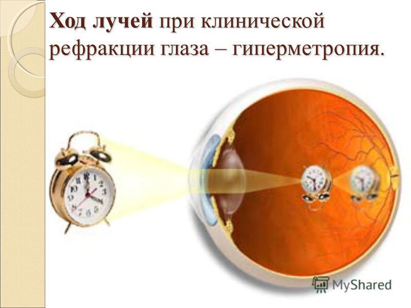 Ход лучей при клинической рефракции глаза – гиперметропия.