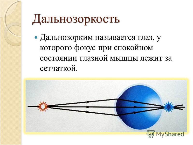 Дальнозоркость Дальнозорким называется глаз, у которого фокус при спокойном состоянии глазной мышцы лежит за сетчаткой.
