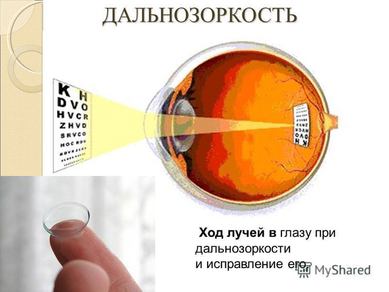 ДАЛЬНОЗОРКОСТЬ ДАЛЬНОЗОРКОСТЬ Ход лучей в глазу при дальнозоркости и исправление его.
