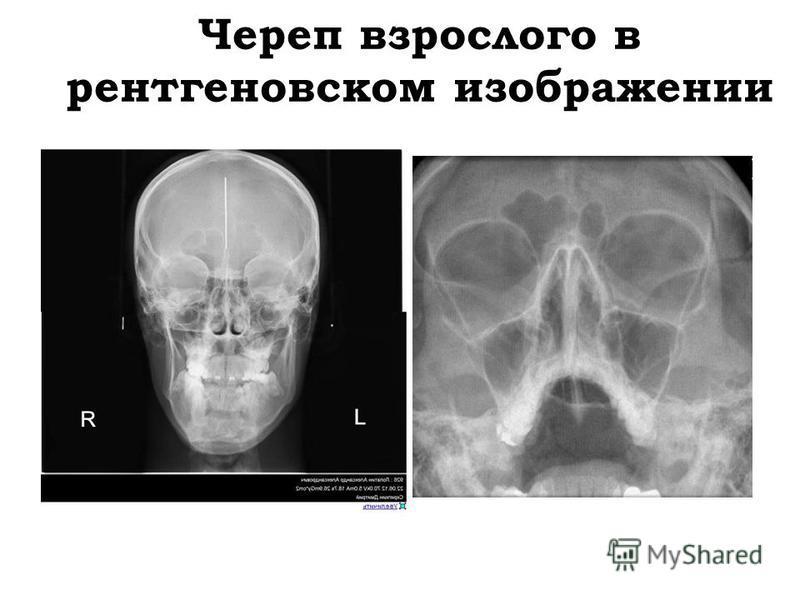 Череп взрослого в рентгеновском изображении