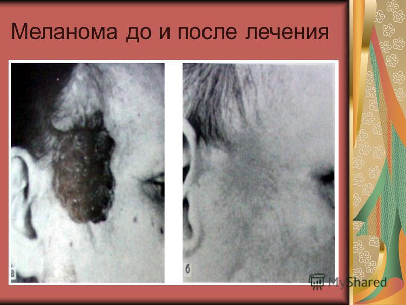 Меланома до и после лечения