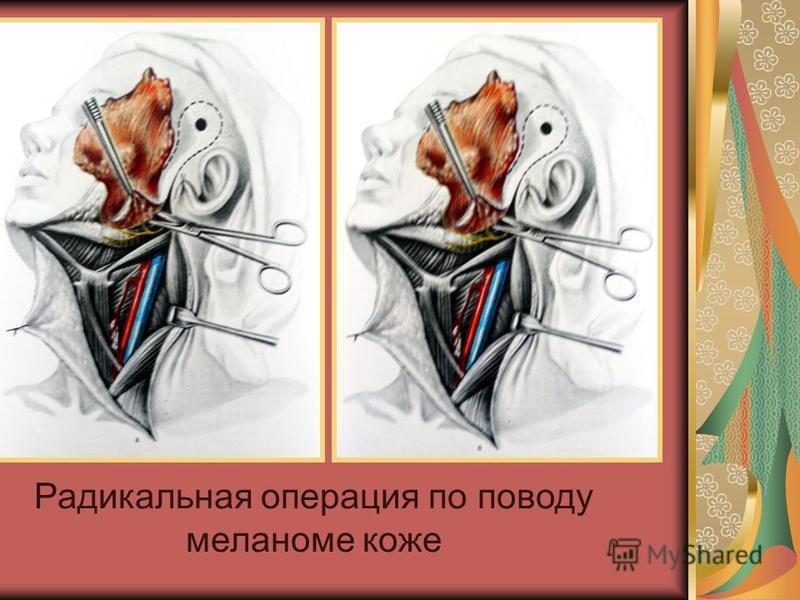 Радикальная операция по поводу меланоме коже