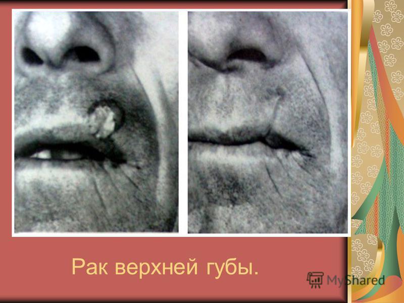 Рак верхней губы.