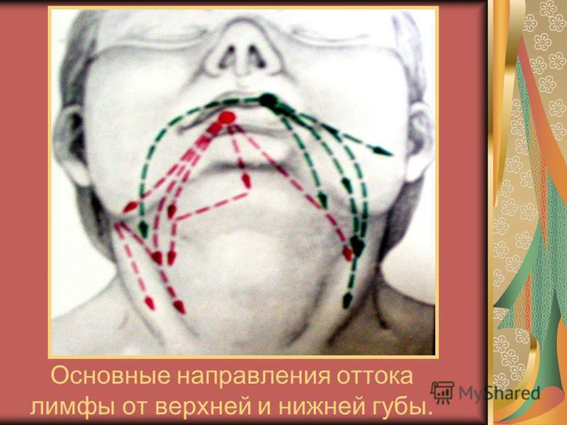 Основные направления оттока лимфы от верхней и нижней губы.