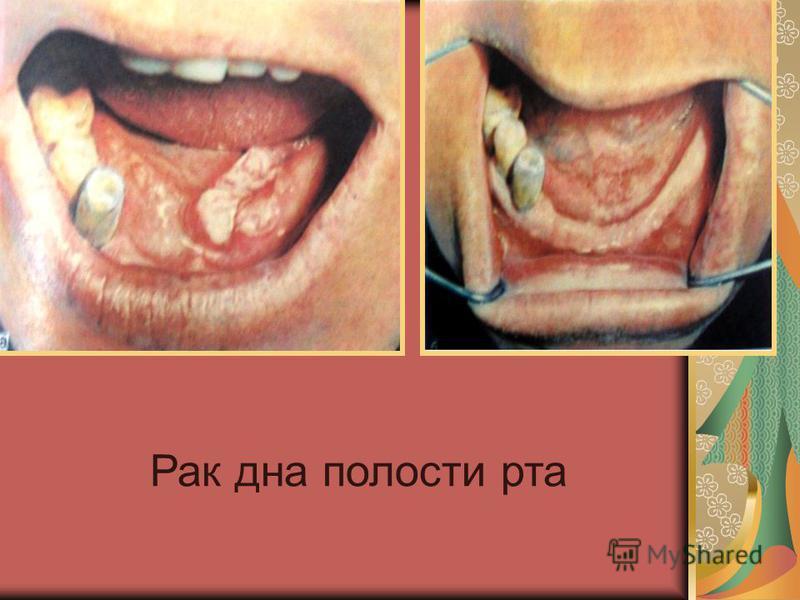 Рак дна полости рта