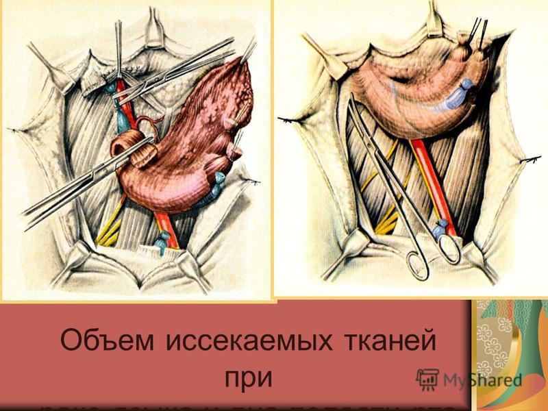 Объем иссекаемых тканей при раке языка и дна полости рта