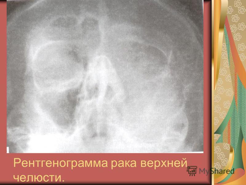 Рентгенограмма рака верхней челюсти.