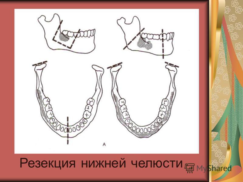 Резекция нижней челюсти