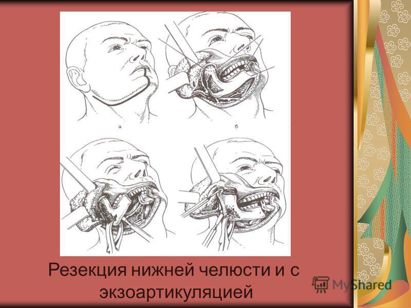 Резекция нижней челюсти и с экзоартикуляцией