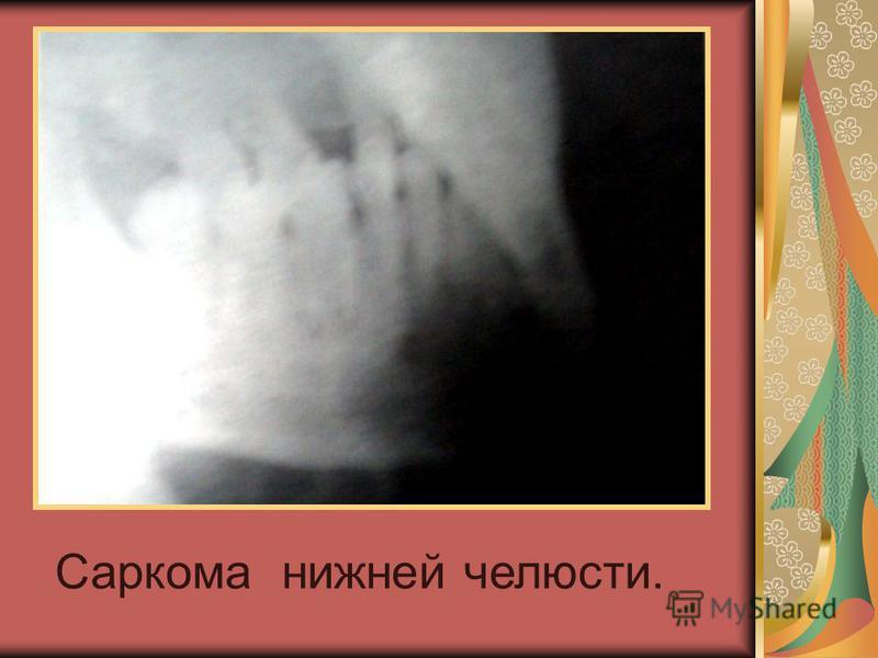 Саркома нижней челюсти.