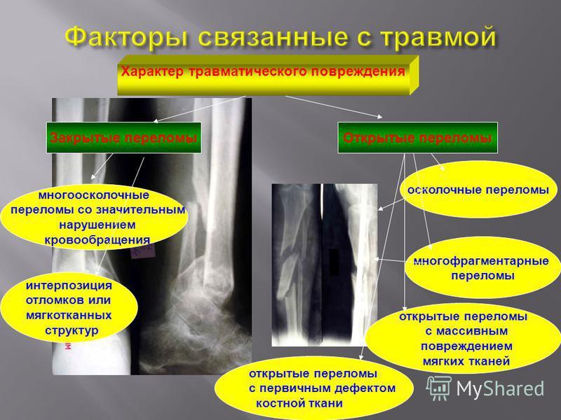 Характер травматического повреждения Закрытые переломы Открытые переломы много осколочные переломы со значительным нарушением кровообращения интерпозиция отломков или мягкотканых структур осколочные переломы многофрагментарные переломы открытые перел