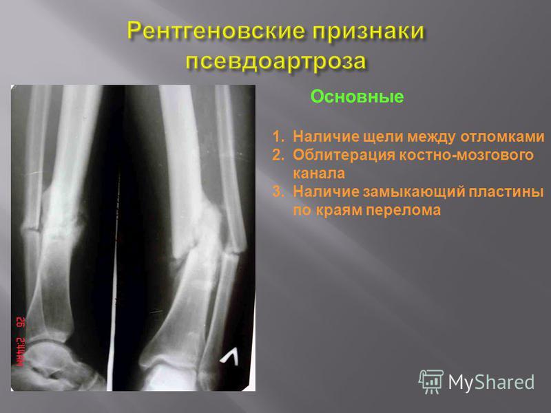 1. Наличие щели между отломками 2. Облитерация костно-мозгового канала 3. Наличие замыкающий пластины по краям перелома Основные