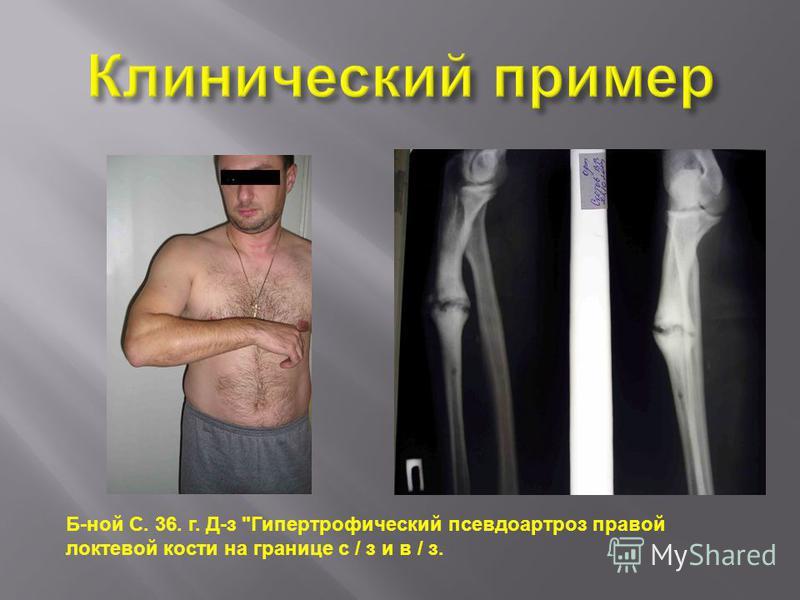 Б-ной С. 36. г. Д-з Гипертрофический псевдоартроз правой локтевой кости на границе с / з и в / з.