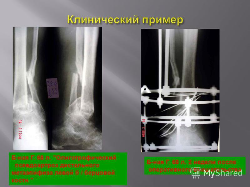 Б-ная Г. 68 л. Олиготрофический псевдоартроз дистального метаэпифиза левой б / берцовой кости  Б-ная Г. 68 л. 2 недели после оперативного вмешательства