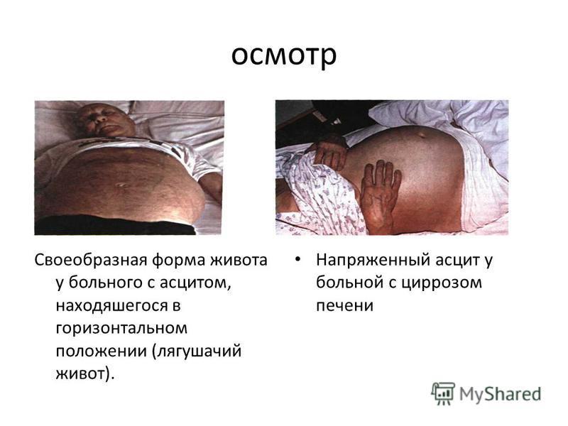 осмотр Своеобразная форма живота у больного с асцитом, находяшегося в горизонтальном положении (лягушачий живот). Напряженный асцит у больной с циррозом печени