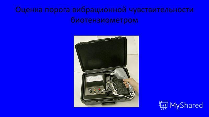 Оценка порога вибрационной чувствительности биотензиометром