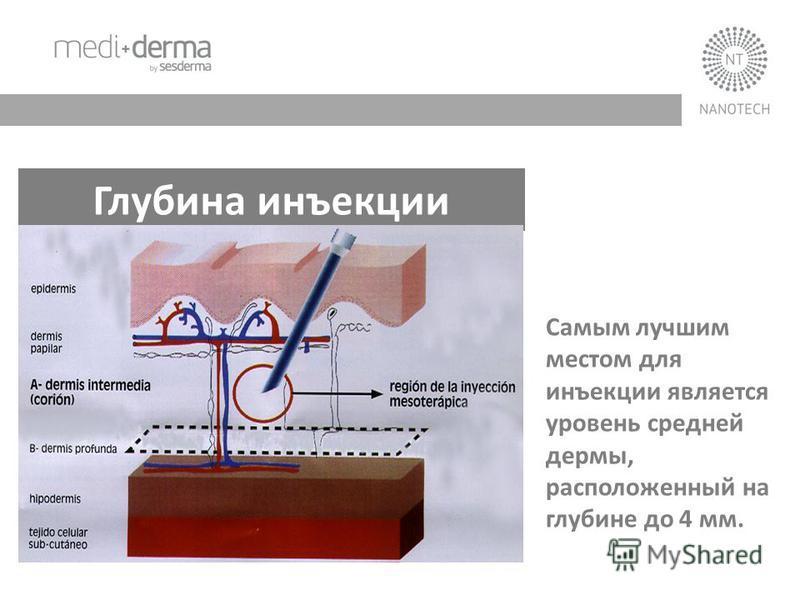 Глубина инъекции Самым лучшим местом для инъекции является уровень средней дермы, расположенный на глубине до 4 мм.