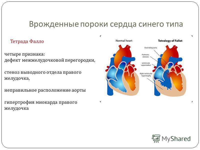 Врожденные пороки сердца синего типа Тетрада Фалло четыре признака : дефект межжелудочковой перегородки, стеноз выводного отдела правого желудочка, неправильное расположение аорты гипертрофия миокарда правого желудочка