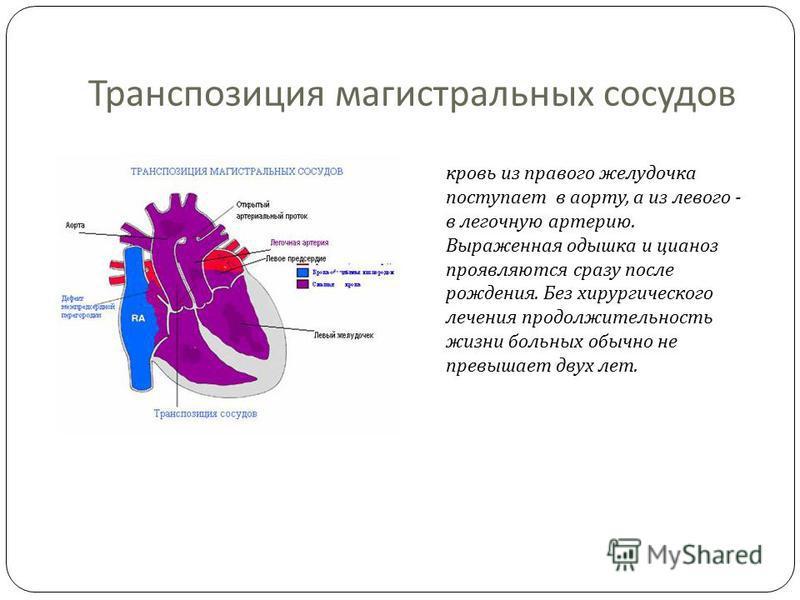 Транспозиция магистральных сосудов кровь из правого желудочка поступает в аорту, а из левого - в легочную артерию. Выраженная одышка и цианоз проявляются сразу после рождения. Без хирургического лечения продолжительность жизни больных обычно не превы