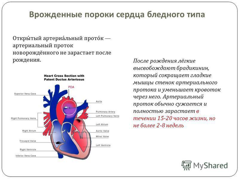 Врожденные пороки сердца бледного типа Открытый артериальный проток артериальный проток новорождённого не зарастает после рождения. После рождения лёгкие высвобождают брадикинин, который сокращает гладкие мышцы стенок артериального протока и уменьшае