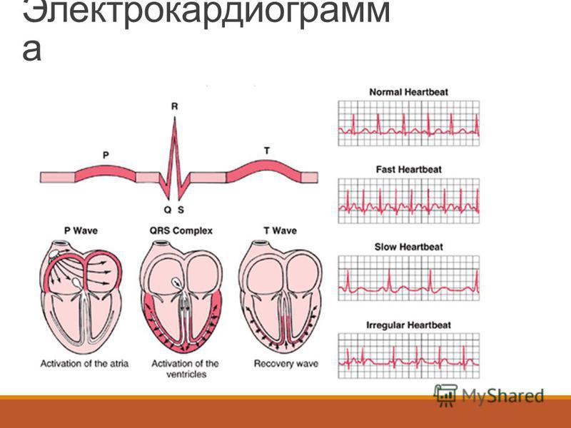 Электрокардиограмм а