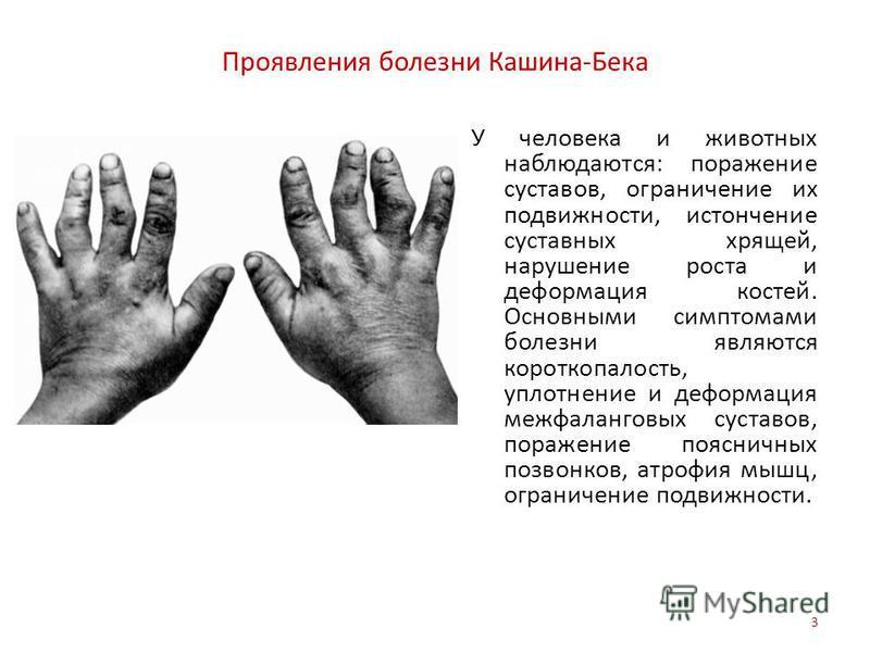 Проявления болезни Кашина-Бека У человека и животных наблюдаются: поражение суставов, ограничение их подвижности, истончение суставных хрящей, нарушение роста и деформация костей. Основными симптомами болезни являются короткопалость, уплотнение и деф
