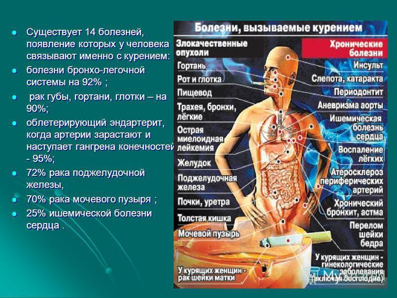 Существует 14 болезней, появление которых у человека связывают именно с курением: Существует 14 болезней, появление которых у человека связывают именно с курением: болезни бронхо-легочной системы на 92% ; болезни бронхо-легочной системы на 92% ; рак