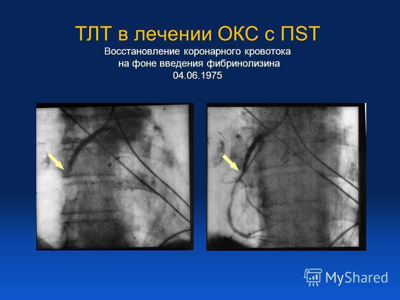 ТЛТ в лечении ОКС с ПST Восстановление коронарного кровотока на фоне введения фибринолизина 04.06.1975
