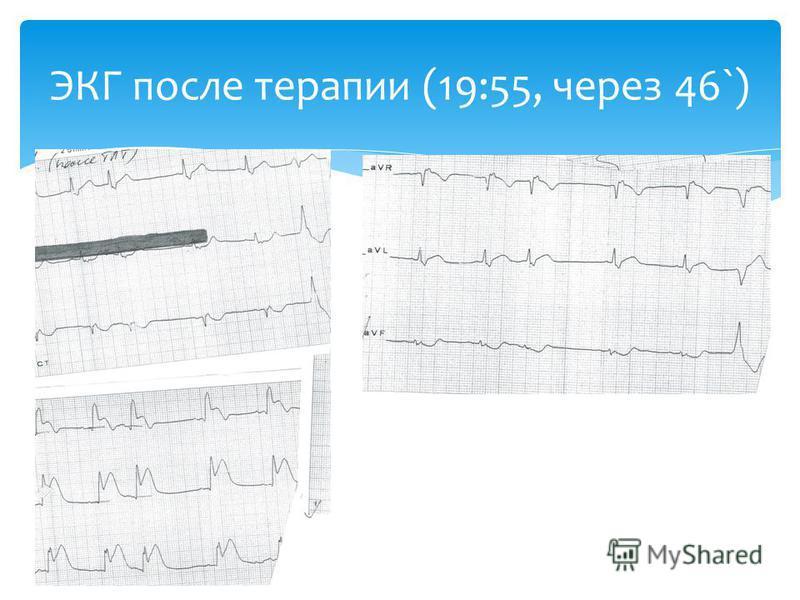 ЭКГ после терапии (19:55, через 46`)