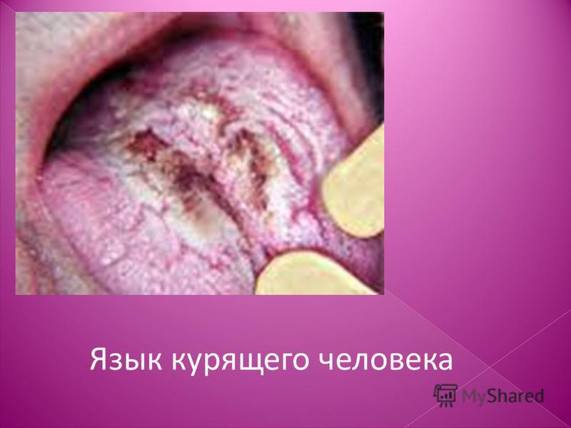 Язык курящего человека