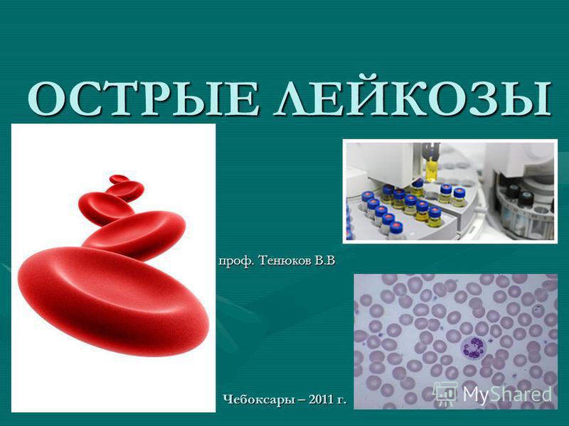 ОСТРЫЕ ЛЕЙКОЗЫ проф. Тенюков В.В Чебоксары – 2011 г.