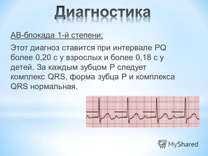АВ-блокада 1-й степени: Этот диагноз ставится при интервале PQ более 0,20 с у взрослых и более 0,18 с у детей. За каждым зубцом Р следует комплекс QRS, форма зубца Р и комплекса QRS нормальная.