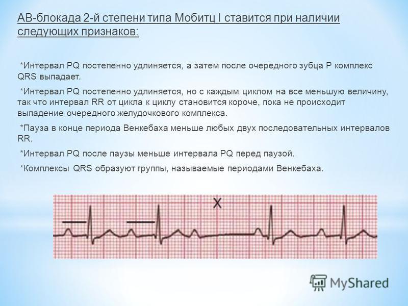 АВ-блокада 2-й степени типа Мобитц I ставится при наличии следующих признаков: *Интервал PQ постепенно удлиняется, а затем после очередного зубца Р комплекс QRS выпадает. *Интервал PQ постепенно удлиняется, но с каждым циклом на все меньшую величину,