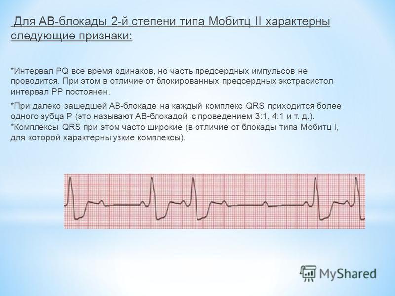 Для АВ-блокады 2-й степени типа Мобитц II характерны следующие признаки: *Интервал PQ все время одинаков, но часть предсердных импульсов не проводится. При этом в отличие от блокированных предсердных экстрасистол интервал РР постоянен. *При далеко за